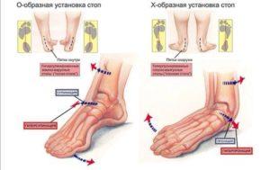 Что происходит при плоскостопии?