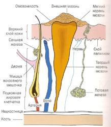 Мозоли, стержневые мозоли