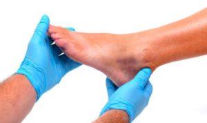 Бородавки на ногах и методы их удаления.